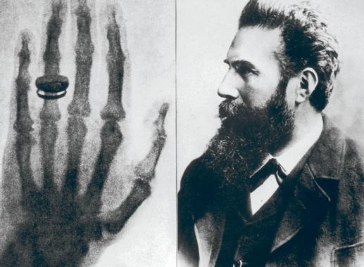 Avec les rayons X et la radiologie, Röntgen bouscule le ...